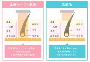 医療レーザー脱毛と光脱毛の効果の違い